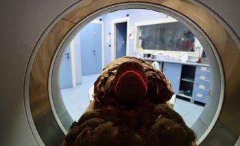 Hospital italiano usa tomografía computarizada para revelar secretos de momia egipcia