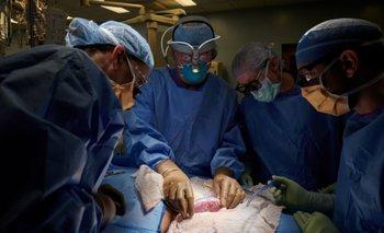 Logran efectuar con éxito el primer trasplante de riñón de cerdo a un ser humano